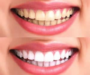 Teeth Whitening Home Kits